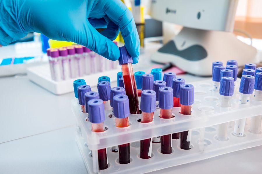 exames - mieloma múltiplo - abrale - câncer