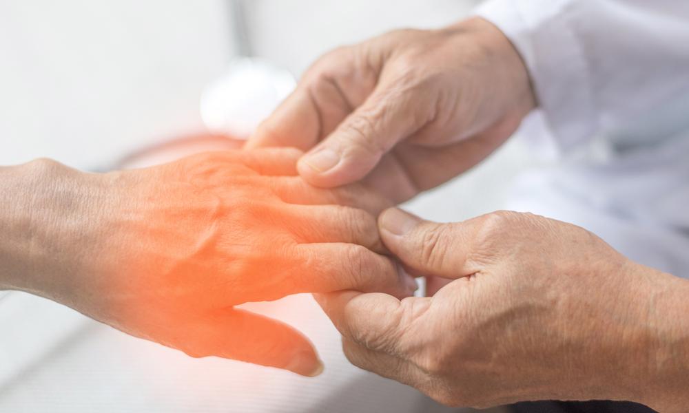 Neuropatia Periférica: Fique De Olho No Formigamento