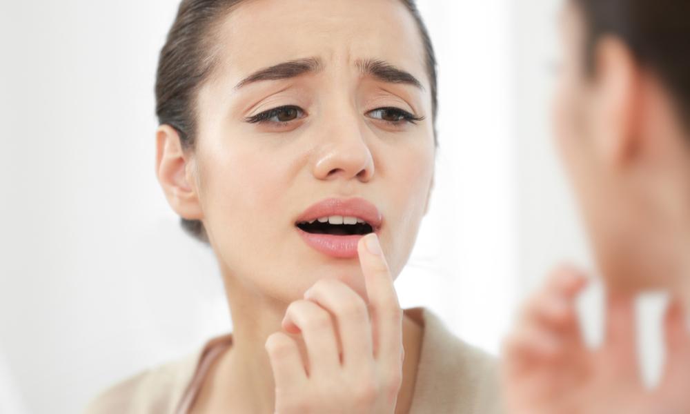 Mucosite , Mucosite Tratamento, Mucosite O Que é, Mucosite Oral, Mucosite Quimioterapia, Mucosite Sintomas, Mucosite Tratamento Natural, Gelo Na Boca, Gargarejos, Inflamação Na Boca