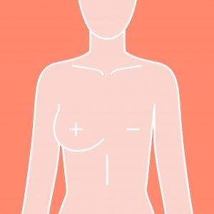 cancer de mama, câncer de mama, sintomas de cancer de mama, cancer de mama sintomas, sintomas cancer de mama, o que é cancer de mama, sintomas do cancer de mama, cancer de mamá, sintomas de câncer de mama, tudo sobre cancer de mama, o que e cancer de mama, tudo sobre o cancer de mama, cancer de mama o que é, neoplasia de mama, mulheres com cancer de mama, sobre o cancer de mama, como identificar cancer de mama, cance de mama, canser de mama, primeiros sinais cancer mama, causas do cancer de mama, como detectar, cancer de mama, tumor mama, cancer de mama feminino, doenças da mama, cancer no seio, quais são os sintomas de cancer de mama, cancer maligno, caroço na mama, cancer mama, cancer mama, fatores de risco cancer de mama, cancer de mama sintomas iniciais fotos, câncer de mama doi, sinais de cancer, tratamento do cancer de mama, tratamento cancer de mama, cancer de mama tratamento, tratamento do cancer de mama, tratamento cancer de mama, cancer de mama tratamento, tratamentos para câncer de mama, tratamento para o cancer de mama, cirurgia de cancer de mama, estagios do cancer de mama, cancer de mama grau 4, cancer de mama grau 3 tempo de vida, cancer de mama grau 3, cancer mama grau 3 tem cura cancer de mama estagio 4 tempo de vida, cancer mama grau 2 tem cura, cancer de mama estagio 2 tem cura, quimioterapia cancer mama grau 3, cancer de mama grau 3 tem cura, cancer de mama nivel 4, cancer de mama grau 5 tem cura, hormonioterapia cancer de mama, cancer de mama quimioterapia antes da cirurgia, cirurgia conservadora da mama, cirurgia mamaria, tudo sobre mastectomia, reconstrução mamária, reconstrução de mama, reconstrução da mama, expansor de mama, reconstrução mamaria, cirurgia de mama, reconstrução da mama com silicone, reconstrução mamária com retalho abdominal, cirurgia plastica mama, expansor mamário, fotos de reconstrução de mama com expansor, retirada da mama e colocação de protese, reconstrução mamária fotos, reconstrução de mama após mastectomia fotos, tip