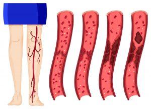trombocitemia essencial, trombocitose essencial, trombocitemia, trombocitopenia essencial, trombocitemia essencial é cancer, trombocitemia essencial tem cura, o que é trombocitose, trombositose, trombocitose o que é, trombocitose discreta, plaquetose confirmada é grave, mieloproliferativa significado, o que significa essencial, escencialm, hidroxiureia 500mg, trombocitemia essencial alimentação, trombocitemia essencial tem cura, trombocitemia essencial é neoplasia maligna, trombocitemia essencial pode matar, trombocitemia essencial tratamento, quem tem trombocitemia essencial pode engravidar, o que e trombocitemia essencial, trombocitemia essencial (hemorrágica) o que é, o que pode causar trombocitemia essencial, o que é trombocitopenia, o que e trombocitopenia, o que trombocitopenia, trombocitopenia causas, defina neoplasia, uma mutação responsável por uma doença sanguínea, defina sangue, o que significa proliferar, oq e trombose, mielofibrose, mielofibrose hemograma, mielofibrose primária, o que é mielofibrose, mielofibrose primaria, fibrose medular, o que é mielofibrose, mielofibrose é cancer, mielofibrose tem cura, doenças hematologicas sintomas, mieloproliferativa significado, hematopoese significado, hematologicas, hematopoiética significado, o que é mielo, exemplos de metaplasia, mielofibrose o que é, o que mielofibrose, o que é mielofibrose idiopática, o que é a mielofibrose, o que significa mielofibrose, o que é mielofibrose tem cura, o que é a doença mielofibrose, o que é mielofibrose primária, mielofibrose o que é?, o que é mielofibrose?, alimentação para quem tem mielofibrose, policitemia, policitemia vera, policetemia, globulos vermelhos altosm, poliglobulia, excesso de, sangue no corpo, o que é policitemia, policitemia vera sintomas, excesso de sangue, policetemia vera, hemoglobina alta no sangue, excesso de globulos vermelhos, policitemia causas, policitemia o que é, glóbulos vermelhos alto, globulos vermelhos alterados, excesso de hemacias, glóbulos 