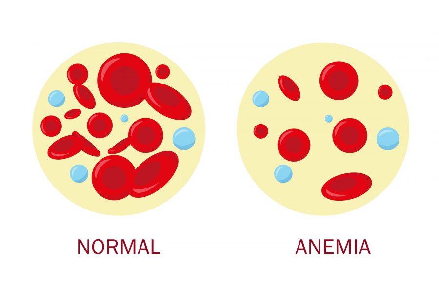 Anemia Aplastica, Anemia Aplástica, Anemia Aplasica, Anemia Aplásica, Pancitopenia, Aplasia Medular, Citopenia, Aplasia De Medula, Hipoplasia Medular, O Que é Pancitopenia, Aplasia Significado, O Que é Aplasia Medular, Pancitopenia Causas, Aplasia Medular é Cancer, O Que Significa Hemacias Normociticas E Normocromicas, Aplasia De Medula óssea, Aplasia Medular Tem Cura, Pancitopenia O Que é, Aplasia Medular óssea, Hematopoiético Significado, Anemia Aplastica Hemograma, Eritropoetina Fisiologia, Linhagem Hematopoiética, Aplasia Medular é Leucemia, Causas De Pancitopenia, Hipoplasia Celular, Aplasia Celular, Anemia Aplastica Diagnostico, Aplasia Medular Tratamento, Sintomas Anemia Aplastica, Hipoplasia Medular Tem Cura, O Que Causa Anemia, Anemia Tipos, Como Saber Se Estou Com Anemia, Causas Da Anemia, Exame De Anemia, Tratamento Para Anemia, Qual Exame Detecta Anemia, Anemia Grave, Como Saber Se Tenho Anemia, Exame Para Anemia, Anemia Tem Cura, Anemia Severa, Medicamento Para Anemia, Sintoma Anemia, Quais Os Tipos De Anemia, Tratamento De Anemia, Exame Para Detectar Anemia, Anemia Exame De Sangue, Como Identificar Anemia, O Que é Aplasia, Quais São, Os Sintomas De Anemia, Exame Que Detecta Anemia, Anemia No Exame De Sangue, Aplasia De Medula óssea