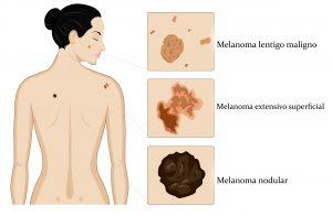 melanoma, cancer de pele sintomas, melanoma maligno, tipos de cancer de pele, sintomas de melanoma, sintomas de cancer de pele, melanoma metastático, cancer de pele coça, pintas na pele, melanona, fotos de cancer de pele melanoma, tipos de manchas na pele que podem ser cancer, cancer de pele tratamento, cancer de pele tipos, pintas cancerigenas, tratamentos para melanoma, tratamento cancer de pele, o que e melanoma, tumor de pele maligno, pinta que coça o que pode ser, sinais cancer de pele, tipos de pintas na pele, doença que muda a cor da pele, o que causa cancer de pele, oque e melanina, o que é melanina?, cancer de pele tem cura cancer melanoma, melanoma de pele, pintas no rosto, tratamentos para melanoma, melanoma extensivo superficial, melanoma benigno fotos, como surgem as pintas, melanoma metastático estágio 4, malígno, melanoma no olho, tipos de pintas na pele, remover pintas, melanoma, maligno tem cura, cancer de pele avançado, metastase de melanoma, cancer de pele metastase, celulas cancerigenas, pode bloquear, células cancerigenas, combate ao cancer de pele, dezembro laranja, o que e dezembro laranja