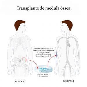 cordão umbilical, coto umbilical, celulas do sangue, cordao umbilical, para que serve a celula tronco, sangue é um tecido, cordão, banco de sangue, o sangue, umbilical, placentários, umbigo umbilical, doencas do sangue, o que é cordão umbilical, banco de cordão umbilical, sangue do cordão umbilical, bancos particulares, doação de cordão umbilical, cordao umbilical, função do cordão umbilical, como cortar cordão umbilical, celulas tronco tratamento, células tronco medula óssea, como funciona o cordão umbilical, como curar leucemia, doenças tratadas com celulas tronco, cordão umbilical função, a utilização de células tronco do próprio indivíduo, células tronco do cordão umbilical, células do cordão umbilical, placenta e cordão umbilical, o cordão umbilical, cordao umbilical do bebe, tratamento com sangue do cordão umbilical, para que serve o cordão umbilical, tipos de coleta de sangue, celula usado, um banco de sangue possui, para que serve umbigo, qual a função do umbigo, celulas tronco, celulas tronco embrionarias, tudo sobre celulas tronco, células tronco adultas, importancia das celulas tronco, tratamento com células tronco no brasil, tratamento com células tronco, quais sao os possiveis beneficios das celulas tronco para a medicina