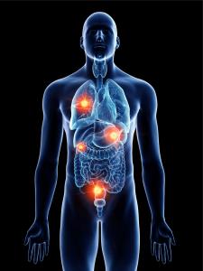 metastase, o que é metastase, metastase tem cura, metastase no figado, metastase ossea, metastase pulmonar, cancer metastase, metastase cerebral, quanto tempo dura a metastase, metastase o que é, o que e metastase, o que e metastase, cancer metastase tempo vida, metastase ossea fase terminal, metastase ossea tem cura, o que metastase, metastase sintomas, mieloma multiplo metastase, sintomas de metastase, cancer com metastase, cancer com metastase tem cura, tratamento para metastase, metástase cancer, células neoplásicas malignas, o que são células neoplásicas, origem do cancer, quando o cancer se espalha, nome quando o cancer se espalha, oque sao celulas, caracteristicas das, celulas neoplasicas, como se forma cancer, metastase como ocorre, cancer espalhado, oq e metástase, celulas malignas, metase, quanto tempo demora para um cancer se espalhar, metástase significado, cancer de pulmão com metástase cerebral tempo de vida, quais as vias de disseminação da metastase, o que é metastase pulmonar, cancer de pulmao da metastase onde, cancer espalhado, cancer metastático de mama tem cura, cancer de pulmão metastase, neoplasia metastática, metástase nos ossos, cancer no corpo todo, tumor metastático, metastase ossea avançada, o que é metastase tem cura, cancer com metastase