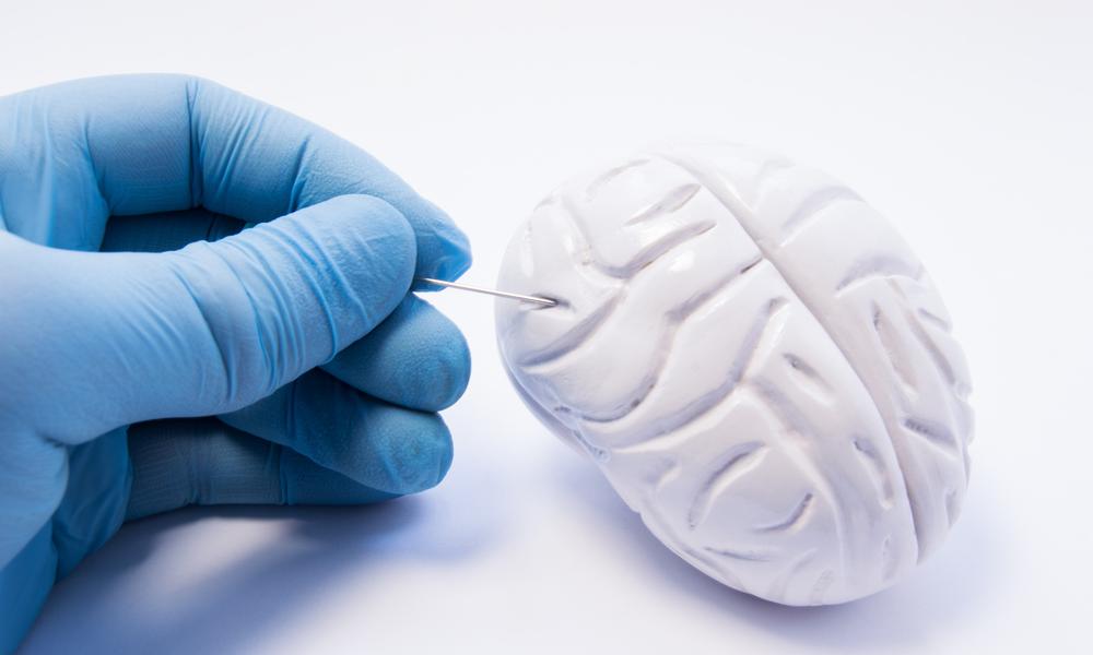 Infiltração Dos Cânceres Hematológicos No Sistema Nervoso Central (SNC)