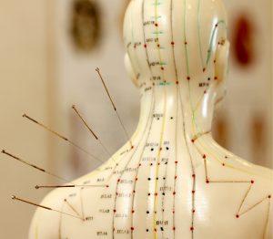 acupuntura, acumputura, acunputura, aculputura, para que serve acupuntura, acupuntura para que serve , para que serve a acupuntura, tratamento acupuntura, acupuntura pontos do corpo, acupuntura dor nas costas, fadiga relacionada ao cancer, acupuntura artigo, fadiga oncologica, acupuntura indicações, dor oncológica, dor do cancer, cancer causa dor, dor em todo o corpo, tipos de dores, tipos de dor, dor aguda, dor oncologica, classificação da dor, tipo de dor, dor intensa, dor aguda e cronica, dores intensas, niveis de dor, quais os benefícios da acupuntura, acupuntura e seus benefícios, os benefícios da acupuntura, acupuntura cura cancer, pontos de acupuntura para cancer, acupuntura indicações e contraindicações, acupuntura cura cancer, puntos de acupuntura para cancer, acupuntura cancer, acupuntura para cancer, acupuntura ajuda no cancer, acupuntura aumenta cancer, dor após acupuntura acupuntura alivia dores, dor e acupuntura, acupuntura tira dor, acupuntura dor muscular, pontos de acupuntura para cancer de mama, acupuntura cancer mama, acupuntura cancer pdf, acupuntura no tratamento do cancer, acupuntura para cancer, acupuntura aumenta cancer, quem não pode fazer acupuntura, neuropatia, neuropatias, relaxamento, náuseas, vômitos, nauseas, vomitos, acupuntura sus, implantação da acupuntura no sus, tratamento de acupuntura pelo sus, acupuntura no sus