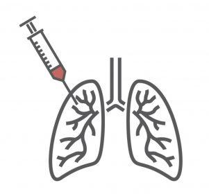 linfoma pulmonar, linfoma não hodgkin, linfoma no pulmão, linfoma pulmonar sintomas, sintomas de linfoma, sintomas de linfoma pulmonar, linfoma de hodgkin pulmonar, linfoma pulmonar causas, linfoma pulmonar maligno, linfoma pulmonar tratamento, linfoma hodgkin pulmonar, linfoma não hodgkin tem cura, toracotomia, linfoma malt pulmonar, linfoma malt, linfoma pulmonar benigno, linfoma pulmonar o que é, linfoma pulmonar primario, linfoma pulmonar prognostico, linfoma pulmonar tem cura, linfoma pulmonar tomografia, linfoma pulmonar é cancer, o que é linfoma pulmonar, sintomas linfoma pulmonar, comprometimento pulmonar no linfoma, diagnóstico linfoma pulmonar cobertura ans, existe linfoma pulmonar, hematologia doença linfoma pulmonar, linfoma de malt pulmonar, o que é linfoma no sangue, linfonodomegalia no pulmão, massa no pulmão tem cura, tumor linfoma, massa no pulmão, neoplasia pulmonar tem cura, lesão no pulmão tem cura, neoplasia maligna pulmonar, linfoma maligno, linfonodos no pulmão pode ser cancer, opacidade em vidro fosco é cancer, opacidade pulmonar, linfonodos pulmonares, neoplasias pulmonares cancer de linfoma, tumor no pulmão, tipos de cirurgia pulmonar, câncer de linfoma, tipos de biopsia pulmonar, cancer no linfoma, tumor no pulmao, sintoma de linfoma, linfonodo no pulmão, cancer linfoma tem cura, sintoma linfoma, linfoma tem cura?, linfoma tem cura, o que é linfoma?, diagnostico linfoma, linfomas tem cura, câncer linfoma, tumor de pulmão, linfoma não hodgkin prognóstico, linfoma de celulas b, sintomas de tumor no pulmão, tipos de linfoma, linfomas, mancha no pulmão, infiltração no pulmão, doença linfoproliferativa, linfoproliferativa, linfomas sintomas, linfoma não hodgkin sintomas, lnh, linfonodos no pulmão pode ser cancer, cancer de pulmão, câncer de pulmão, cancer de pulmão sintomas, sintomas de cancer de pulmão, sintomas de cancer no pulmão, cancer de pulmão tem cura, sintomas cancer de pulmão, sintomas do cancer de pulmão