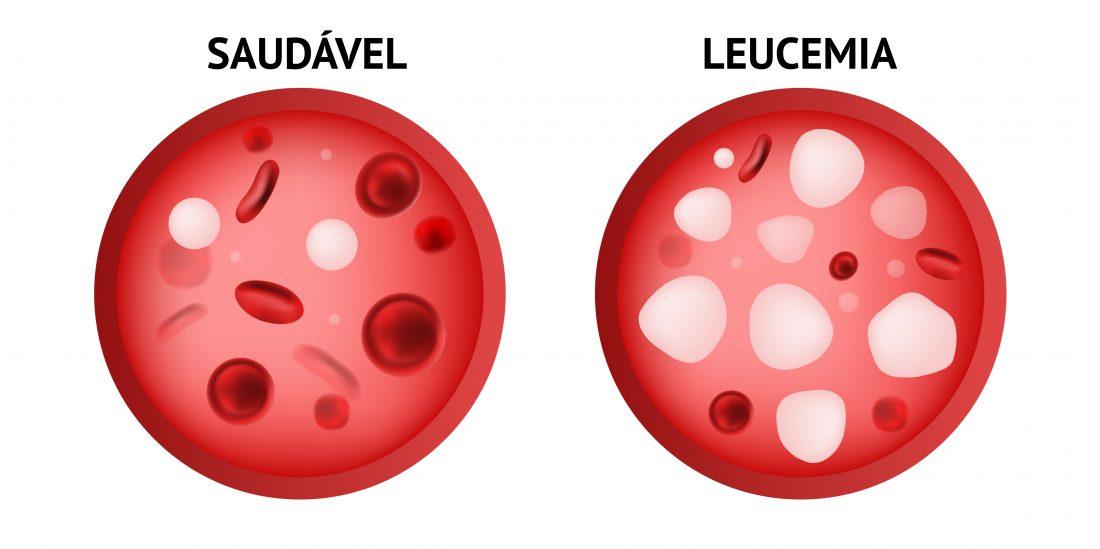 Hemograma, Leucemia Hemograma, Hemograma De Uma Pessoa Com Leucemia, Como Diagnosticar Leucemia No Hemograma, Hemograma De Leucemia, Leucemia Hemograma Valores, Tipos De Leucemias, Glóbulos Vermelhos, Exame De Sangue, Alteração Cromossômica, Hemograma Completo, O Que é Hemograma Completo, Alteração Genética, Sangue Periférico, Biópsia De Medula, Leucemia Mieloide Crônica, Leucemia Linfoide, Glóbulos Brancos, Células Do Sangue, Et Al, Real Time Pcr, Células Leucêmicas, T 9 22, Células Sanguíneas, Leucemia Mieloide Cronica, Leucemia Cronica, Plaquetas Altas, Leucocitos Baixos, Leucócitos Alto, Leucocitos Altos Leucócitos Baixo, Segmentados Alto, Leucócitos Altos, Leucócitos Baixos, Monocitos Baixos, Monocitos Altos, Neutrofilos Baixos, Plaquetas Normais, Blastos, Eritrocitos Altos, Leucocitos Alto, Hemograma Normal, Leucemia Hemograma, O Que é Hemograma, Tipos De Leucocitos, Bastonetes No Hemograma, Leucocitos Normais, Neutrófilos Baixos, Plaqueta Baixa, Plaquetas Baixas, Leucócitos Normal, Bastonetes Hemograma, Leucograma Segmentados Alto, Plaquetas Altas O Que Significa, Contagem De Plaquetas Alta, Hemograma Com Plaquetas, Leucograma Alto, Leucemia Hemograma Valores, Hemograma Leucemia, Hemograma De Leucemia, O Que E Hemograma Exame Para Detectar Leucemia, Diagnóstico De Leucemia, Diagnóstico Leucemia, Leucemia Diagnóstico, Diagnostico De Leucemia, Diagnostico Leucemia, Leucemia Diagnostico, Leucemia Hemograma Normal, Leucemia No Hemograma, Hemograma Com Leucemia, Como Identificar, Leucemia No Hemograma, Leucemia Aguda, Leucemia Linfoide Aguda, Leucemia Mieloide Aguda, Leucemias Agudas, Hemograma Na Leucemia, O'que E Hemograma, Qual Exame Detecta Leucemia, Exame Para Leucemia, Exame Leucemia, Exame De Leucemia, Como Diagnosticar Leucemia, Sintomas De Leucemia, Sintomas Da Leucemia, Exame Para Detectar Leucemia, Leucemia Exame De Sangue, Exame De Sangue Leucemia, Leucemia Linfoide Aguda Hemograma, Leucemia Hemograma Completo, Exame Leucemia Positivo, Leucemia Hemogra