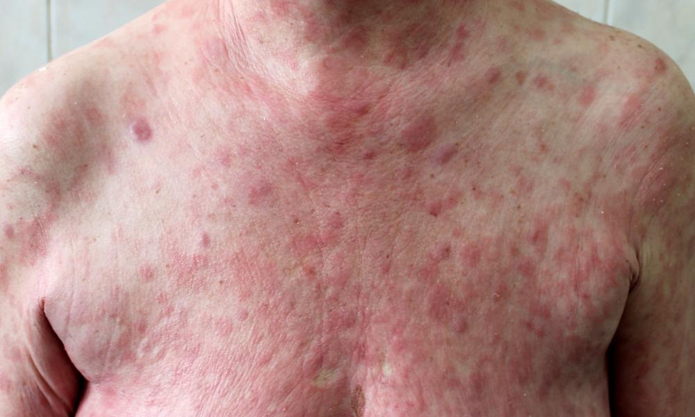 Micose Fungoide, Micose Fungoide Hipocromiante, Micose Fungoide Pode Matar, Tratamento Para Micose Fungoide, Micose Fungoide Diagnostico, Micose Fungoide Tem Cura, Micose Fungoide é Transmissivel, Cancer Micose Fungoide, Dermatologista Especialista Em Micose Fungoide, Estagios Da Micose Fungoide, Micose Fungoide Causas, Micose Fungoide Como Diagnosticar, Micose Fungoide Cura, Micose Fungoide Linfoma, Micose Fungoide Sintomas, Micose Fungoide Tratamento, O Que é Micose Fungoide, Tratamento Micose Fungoide, Linfoma Cutâneo De Células T Ou Micose Fungóide, Parte Do Corpo, Linfoma Cutâneo Primário, Linfomas Cutâneos De Células T, Linfomas De Células B, Grandes Células, Medula óssea, órgãos Internos, Zona Marginal, Tipos De Linfomas, Linfócitos T, Dentre Os Linfomas, Linfoma Não Hodgkin, Linfomas Cutâneos De Células, Doença Rara, Micose Fungóide, O Que é Linfoma Cutâneo, Linfoma Cutaneo Tratamento, Linfoma Cutaneo Sobrevida, Linfoma Cutaneo Sintomas, Linfoma Cutaneo Raro, Linfoma Cutaneo Prognostico, Linfoma Cutaneo Fotos, Linfoma Cutaneo Em Caes, Linfoma Cutaneo Diagnostico, Linfoma Cutâneo Em Cães, Micose Fungoide Hipocromiante, Textura Do Linfoma, Parapsoríase, Psoríase Grave, Eritrodermia Esfoliativa, Linfoma Cutâneo Diagnóstico Diferencial, Linfoma Cutâneo Em Gatos, Linfoma Paniculite-símile, Micose Fungóide Scielo, Micose Fungóide Cid, Micosis Fungoide, Linfoma Da Zona Marginal, Video De Micose Fungoide, Linfoma Angioimunoblástico, Linfomas Cutâneos Primários, Micose Fungóide Foliculotrópica, Linfoma Cutâneo Sobrevida, Estágios Da Micose Fungoide, Vorinostat Anvisa, Linfomas Das Células T, Linfoma Na Medula óssea Tem Cura, Linfoma T Angioimunoblástico, Linfoma Cutâneo De Células T Tem Cura, Linfoma Cutaneo Benigno, Linfoma Cutaneo Biopsia, Linfoma Cutaneo Celulas T Diagnostico, Linfoma Cutaneo Celulas T Tratamento, Como Tratar Micose Fungoide, Como Detectar Micose Fungoide, Como Cura Micose Fungoide, Como Se Pega Micose Fungoide, Como Surge A Micose Fungoide, Como 