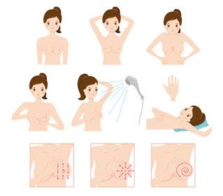 câncer de mama, diagnóstico de cancer de mama, sintomas de câncer de mama, câncer de mama sintomas, sintomas câncer de mama, tipos de câncer de mama, quais são os sintomas do câncer de mama, tratamentos para câncer de mama, qual o, sintoma de câncer de mama, homem também tem câncer de mama, qual os sintomas de câncer de mama, quem amamenta pode ter câncer de mama, exame de mamografia, mamografia, mastectomia, mastectomia radical, mastectomia total, mastectomia bilateral, tipos de mastectomia, cirurgia de mastectomia, mastectomia parcial