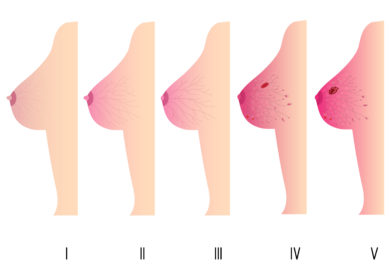 linfonodos na mama, o que são linfonodos axilares, linfonodos nas axilas é perigoso, retirada de linfonodos axilares consequencias, quantos linfonodos temos na axila, cancer na axila, metástase linfonodal, linfonodos axilares é cancer, mama axilar, linfonodo sentinela mama, linfonodo axilar, linfonodos axilares, linfonodos na axila, tumor na axila, consequencias esvaziamento axilar, linfonodos nas axilas , linfonodo na axila, cancer nas axilas, o que significa linfonodos axilares, linfonodo mama, linfonodos mama, linfonodo axilar direito, tumor nas axilas, linfonodos axilar, cancer linfonodos, quando um linfonodo e câncer?, linfonodo na mama, o que é linfonodos na mama, linfonodos na mama vira cancer, linfonodo na mama é cancer, o que significa linfonodos na mama, o que linfonodos na mama, o que é um linfonodo na mama, linfonodos habituais na mama, linfonodos na mama é perigoso, o que quer dizer linfonodos na mama, linfonodo na mama direita, linfonodo na mama esquerda, linfonodo na mama é normal, linfonodos aumentados na mama linfonodos benignos na mama, câncer de mama, diagnóstico de cancer de mama, sintomas de câncer de mama, câncer de mama sintomas, sintomas câncer de mama, tipos de câncer de mama, quais são os sintomas do câncer de mama, tratamentos para câncer de mama, qual o, sintoma de câncer de mama, homem também tem câncer de mama, qual os sintomas de câncer de mama, quem amamenta pode ter câncer de mama, exame de mamografia, mamografia, mastectomia, mastectomia radical, mastectomia total, mastectomia bilateral, tipos de mastectomia, cirurgia de mastectomia, mastectomia parcial, linfoma na mama, , linfoma benigno na mama, linfoma na mama sintomas, linfoma na mama é cancer, linfoma na mama esquerda, nodulo linfoma na mama, o que são linfomas na mama, o que é linfoma na mama, o que é um linfoma na mama, cirugia de linfoma na mama, como tratar um linfoma na mama, existe linfoma na mama, linfoma com metastase na mama, linfoma protese mama, linfoma anaplasico de