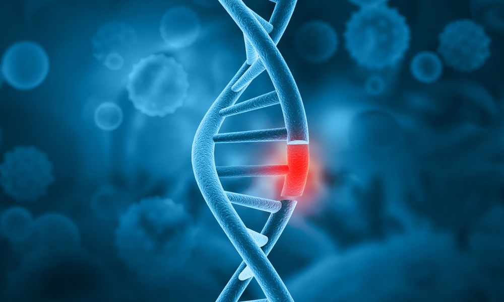 Cromossomo Philadelphia, Leucemia Mieloide, Leucemia Cronica, Leucemia Mieloide Cronica, Leucemia Crônica, Cromossomo Filadelfia, Cromossomo Filadélfia, Cromossomo 22 , Cromossomo 9, Cromossomo Philadelfia, Sindrome Do Cromossomo 9, Ph Negativo, Bcr-abl Significado De Filadelfia, Mieloide, Leucemia Mielóide, Mielograma Exame, Leucemia Mieloide Cronica Hemograma, Exame Para Leucemia, Mielograma Resultado, Lmc Tratamento, Proteina Indetectavel, Leucemia Mieloide Aguda Tratamento, Remedio Para Leucemia, Leucemia Cronica Pode Matar, Dasatinibe Preço, Pcr Quantitativo Alto, Leucemia Mata?, Quimioterapia Para Leucemia, O Que é Leucemia Cronica, Medicamentos Para Leucemia, Leucemia Mieloide Cronica Tratamento, Tratamento Alternativo Para Leucemia Linfoide Cronica, Leucemia Mieloide Cronica Alterações Laboratoriais, Leucemia Mieloide Cronica Celulas, Tratamento Da Leucemia Mieloide Cronica, Leucemia Mieloide Cronica Pronostico, Cromossomo Philadelphia Leucemia, Exame Cromossomo Philadelphia, O Que é Cromossomo Philadelphia, Lmc Ph Negativo, Cromossomo Philadelphia Bcr Abl, Leucemia Mieloide Cronica Cromossomo Philadelphia, Cromossomo Philadelphia Positivo, Cromossomo Philadelphia Tratamento, Lmc Ph+, Tratamento Da Lmc