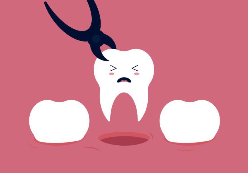Tratamento Odontologico, Protocolo Odontologico Para Pacientes Oncologicos, Tratamento, Odontologico Em Pacientes Oncologicos, Pacientes Oncologicos Em Odontologia, Tratamento Bucal, Manejo De Pacientes Oncologicos, Cuidados Depois De Fazer Um Canal, O Que Fazer Antes De Extrair Um Dente, Dicas Para Passar Dor De Dente, Arrancar O Dente Doi, O Que Nao Comer Apos Extrair Um Dente, Quantos Dentes Posso Extrair De Uma Só Vez, Odontologia Oncologica, Sangramento Bucal, Tratamento De Odontologia Gratuito, Tratamento Odontologico Em Pacientes Oncologicos, Oncologia Na Odontologia, Quem Tem Cancer Pode Fazer Implante Dentario, Tratamento Odontologico, Pacientes Oncologicos Em Odontologia, Dentista Especialista Em Cancer De Boca, Extração De Dente, Extração De Dente Quantos Dias De Repouso, Extração De Dente Valor, Remedio Para Tomar Apos Extração De Dente, Extração De Dente Inflamado, Valor De Extração De Dente, Cuidados Apos Extração De Dente, Extração De Dente Doi, O Que é Extração De Dente, Como Higienizar A Boca Após Extração De Dente, Cuidados Pos Extração De Dente, Remedio Caseiro Para Cicatrizar Extração De Dente, O Que Comer Apos Extração De Dente, Dentista Oncologista, Dentista Especialista Oncologia, Dentista Pacientes Oncologicos, Oncologia Dentista, Quem Tem Cancer Pode Extrair Dente, Riscos De Extrair Um Dente