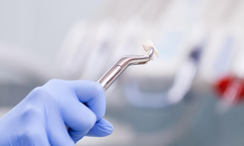 Quem Tem Câncer Pode Extrair Dente?
