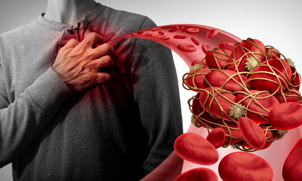 Coágulo Sanguíneo Por Conta Da Trombocitemia Essencial