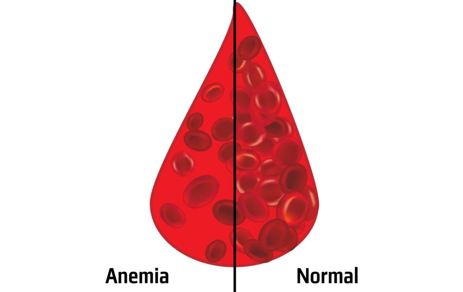 Anemia No Sangue No Hemograma De Mieloma Multiplo