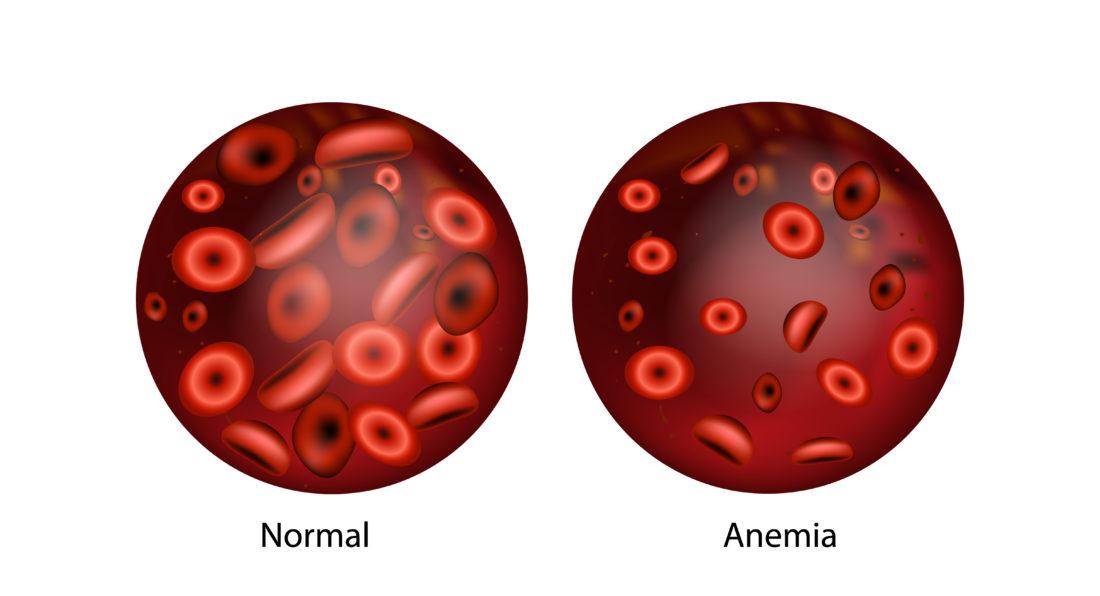 Comparação De Um Vidro Com Sangue Com Anemia E Outro Com Sangue Saudável