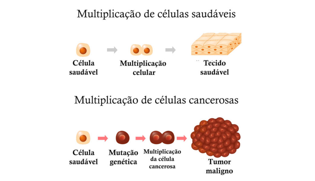 Etapas De Desenvolvimento Do Câncer