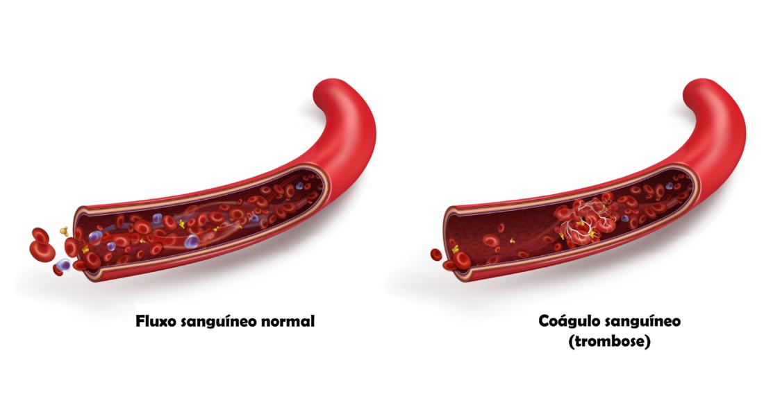 Comparação Entre Uma Veia Sem E Com Coágulo Sanguíneo Por Não Utilizar A Aas Na Trombocitemia Essencial