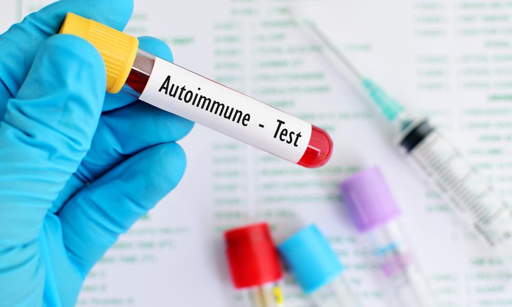 Exame Para Diagnostico De Doença Autoimune