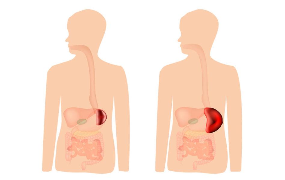 Comparação De Uma Pessoa Com O Baço Normal E Outra Com O Baço Aumentado Como Um Dos Sintomas De Mielofobrose
