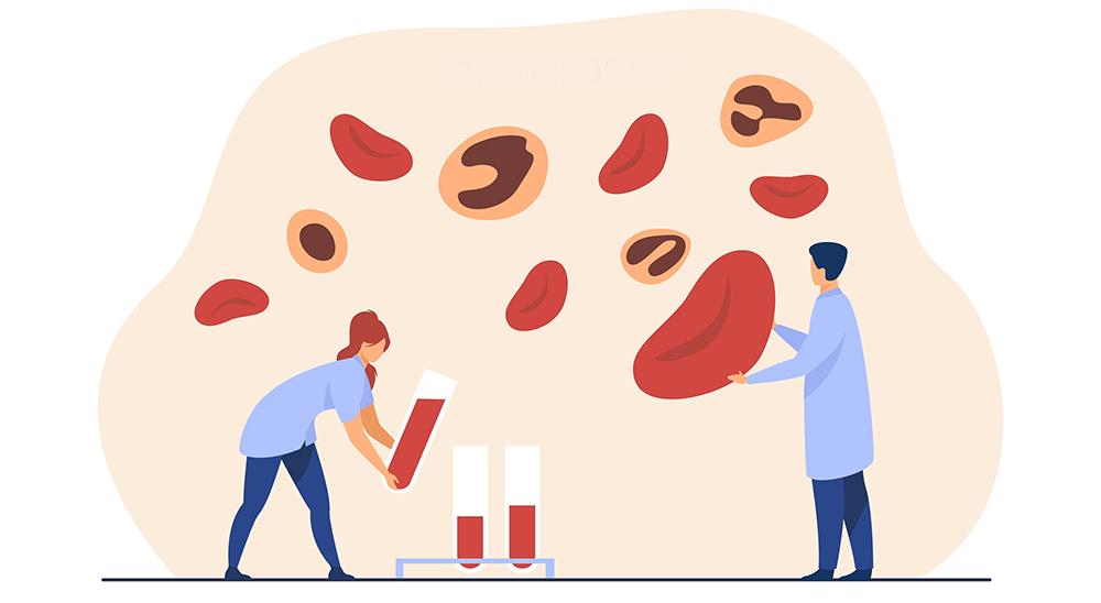 Profissionais Da Saúde Avaliando As Células Do Sangue Para Classificar A Sindrome Mielodisplásica