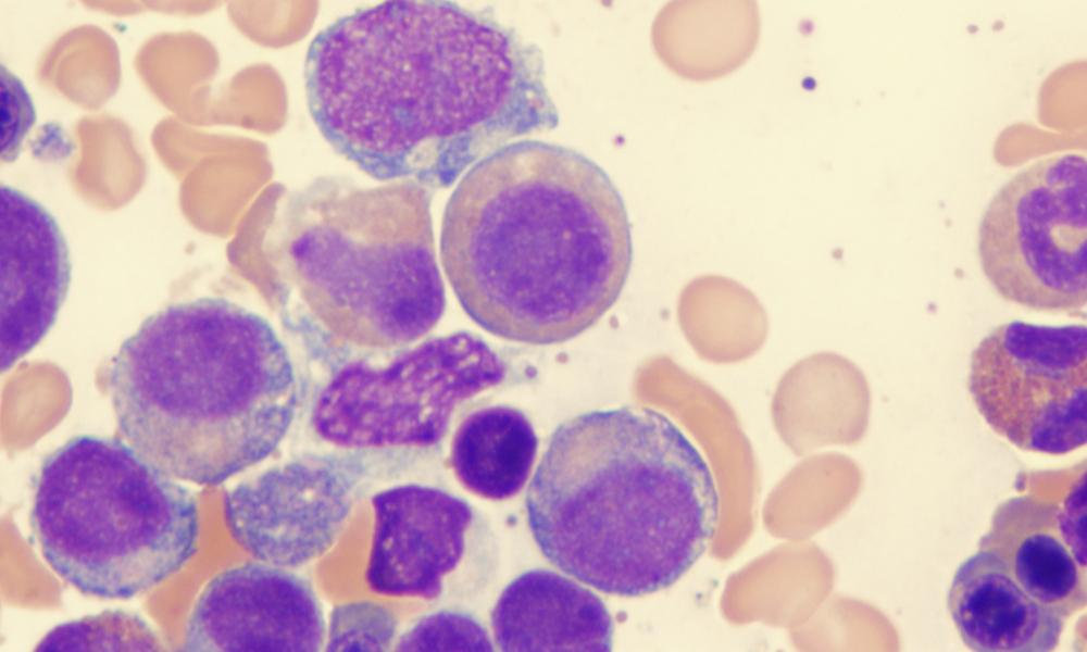 Células Da Síndrome Mielodisplásica